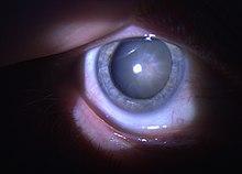 cataracta istoric oftalmologie