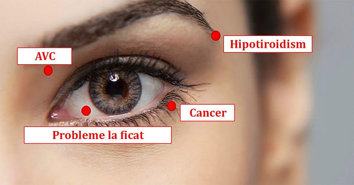 hipotiroidismul vedere încețoșată
