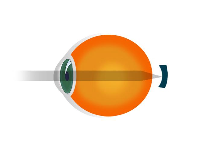 cum să îmbunătățim dacă hipermetropie viziune de ce 1