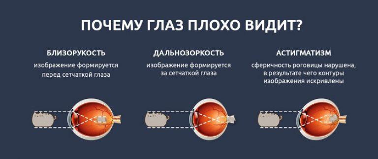 Viziune - 3, cum să recupereze? - Cum să restabiliți vederea fără intervenții chirurgicale