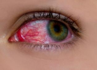 conjunctivita alergica deteriorarea legată de vârstă