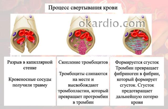 dicinona în oftalmologie