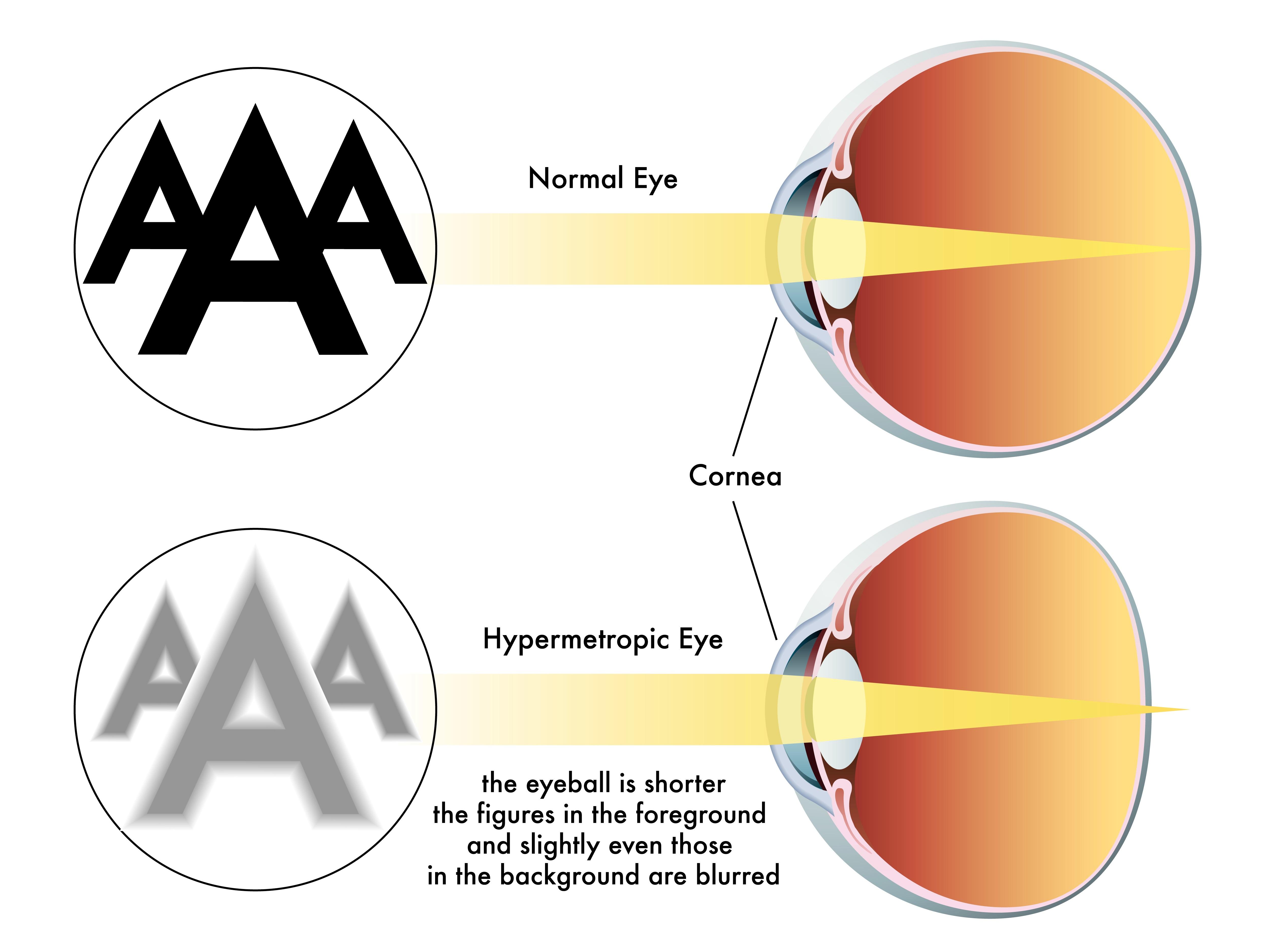ce înseamnă hipermetropie și miopie cum se restabilește vederea plus 5