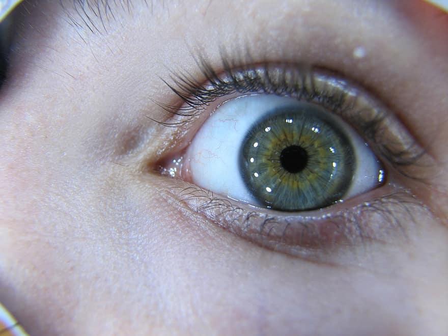 viziunea zboară în ochi
