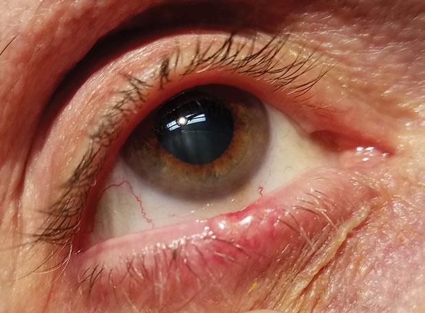 pastile sau picături pentru a îmbunătăți vederea