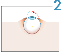 cost de corectare a vederii cu laser