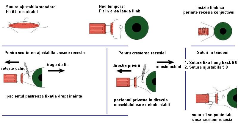 tehnica de restaurare a vederii roslomy