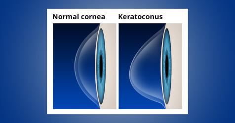 Keratoconus FAQ - Sănătate -