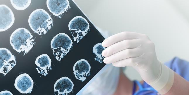 vedere și hipoxie cerebrală
