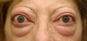 modul în care gușa afectează vederea pentru a normaliza vederea