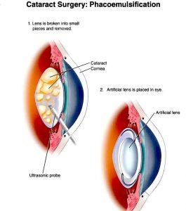 afectarea vederii în bolile vasculare