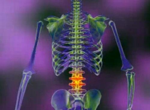 modul în care vertebrele cervicale afectează vederea