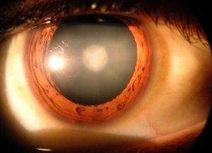 Cerc de curcubeu înaintea ochilor - Anatomie September