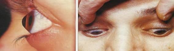 Cum să rezolvi miopia incipientă?