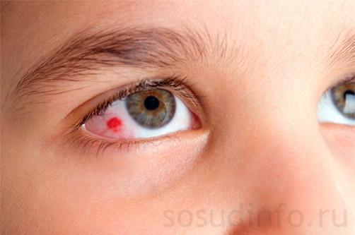 autism și vedere naște dacă vederea este slabă