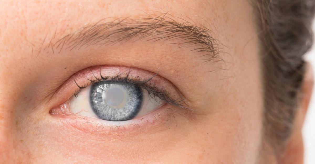cauza pierderii vederii la un ochi ce înseamnă 8 de vedere