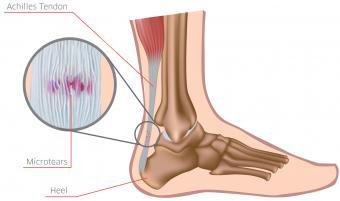 Piciorul drept foarte tare ce să facă - Anatomie September