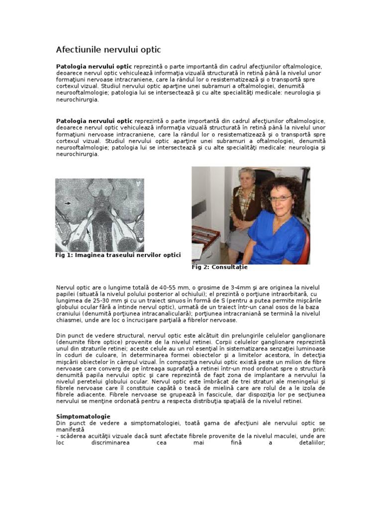 Afectiunile nervului optic | Novaoptic Botosani
