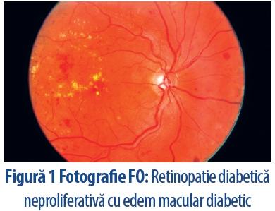 vederea a apărut cu retinopatie 5 ce să ștergeți pentru vedere