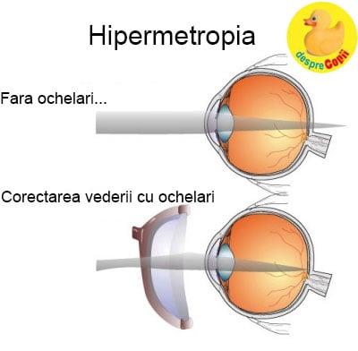ochelari pentru corectarea fotografiei viziunii