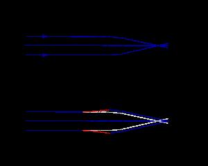 hipermetropie ereditară
