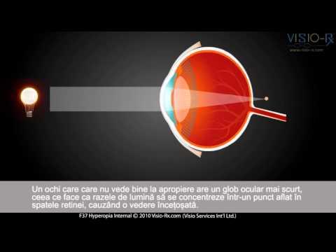 afectează citirea asupra vederii