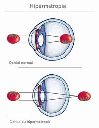 Diferența dintre miopie și hipermetropie