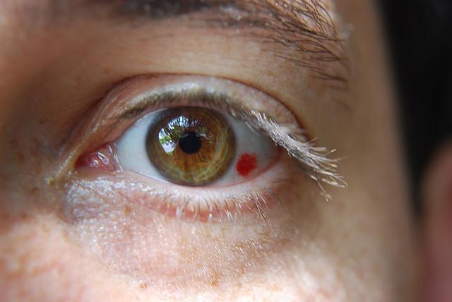 vederea a scăzut brusc pe ochiul drept
