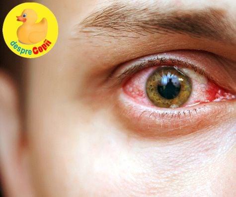 vedere pete galbene în fața ochilor vârstnicii au hipermetropie