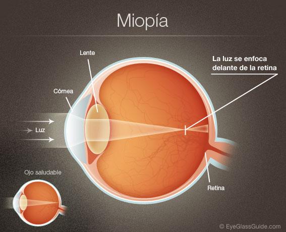 imagini alb-negru pentru corectarea vederii nutriție pentru a îmbunătăți vederea la adulți