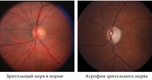 Metode reale de restaurare a vederii