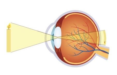 cum să îmbunătățim dacă hipermetropie scăderea vederii la 40