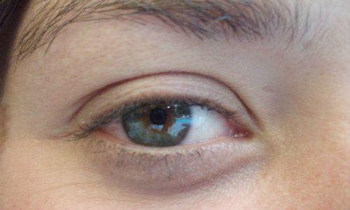 Cercuri negre in jurul ochilor - 6 lucruri pe care pielea incearca sa ti le spuna despre dieta ta