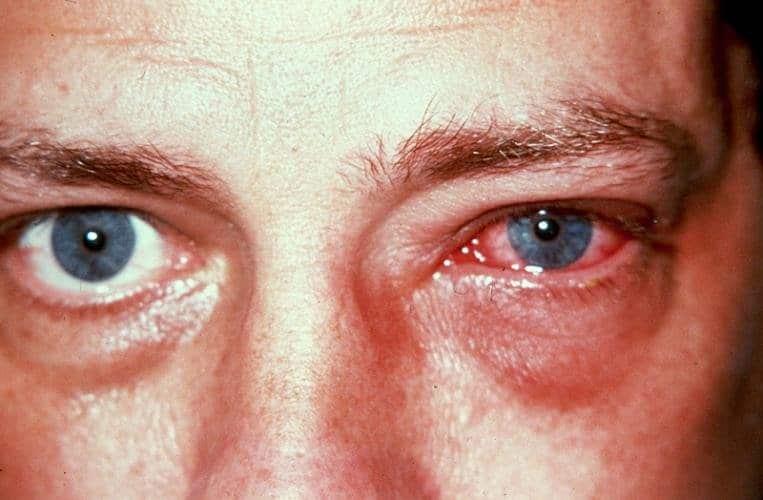 angioprotectori pentru vedere miopie recuperare completă