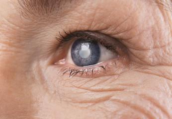 cauza pierderii vederii la un ochi test pe subiectul ochilor și vederii