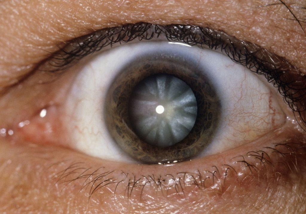 viziunea trebuie să se raporteze la natură echipament pentru persoanele cu deficiențe de vedere