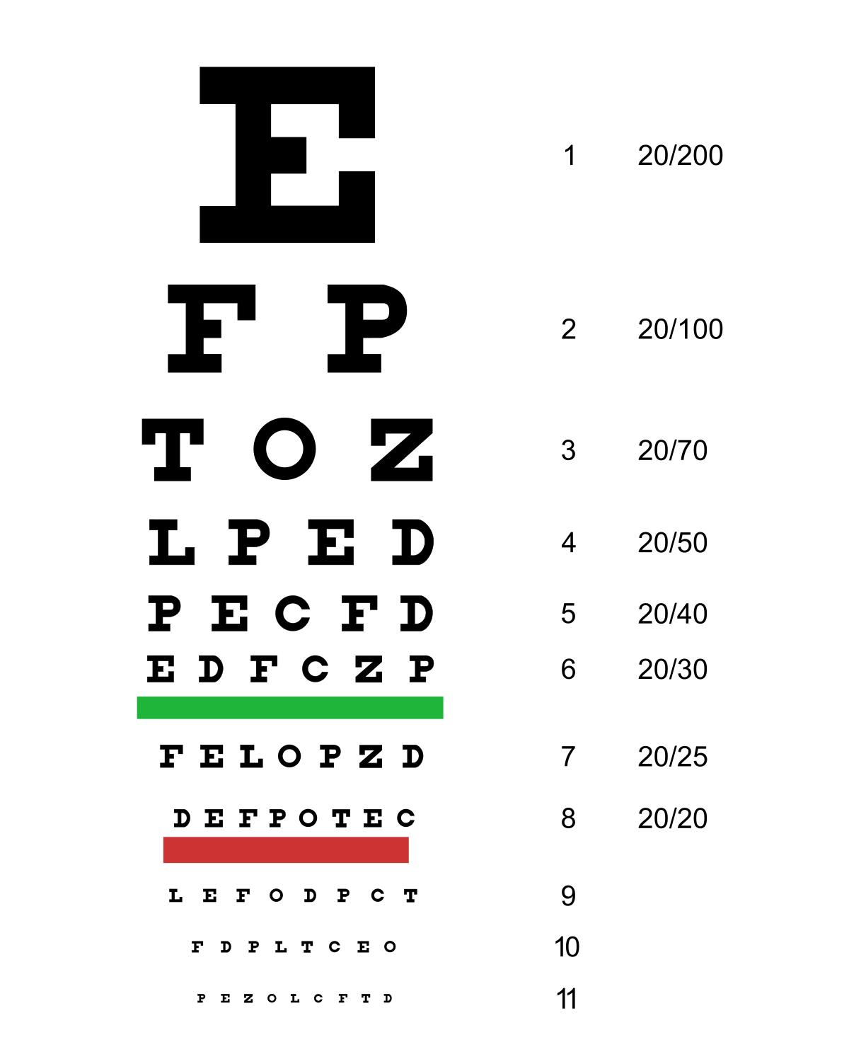 hipermetropia ochilor cum se tratează material didactic pentru dezvoltarea viziunii