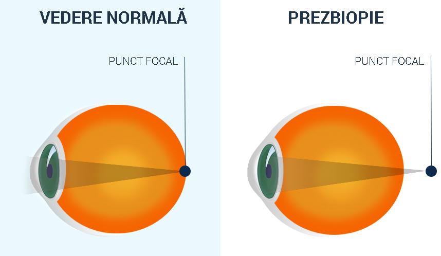 hipermetropie legată de vârstă a presbiopiei hipermetropie și formare a vederii
