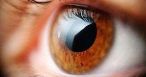 cu vedere slabă, pupilele sunt dilatate