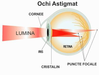 chirurgie oculară miopie și astigmatism