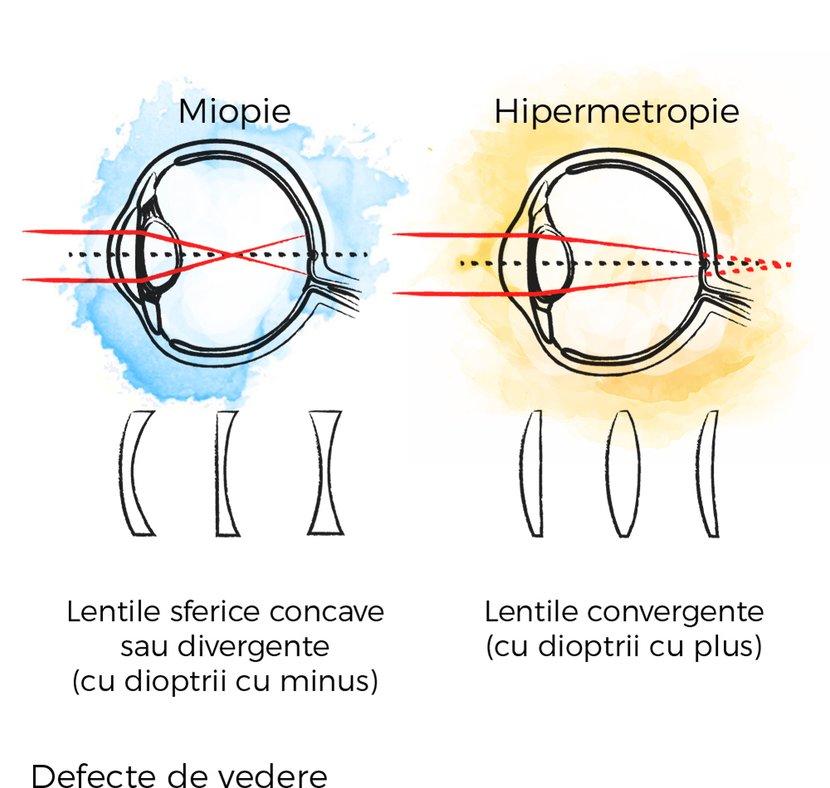 când atât miopia cât și hipermetropia vederea este complet pierdută