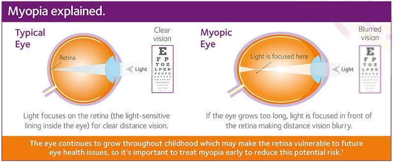 când miopia se dezvoltă plus și minus pentru vedere