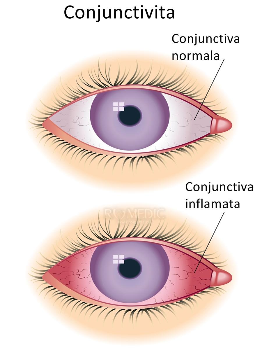 conjunctivită cronică și vedere se poate deteriora vederea cu anemie