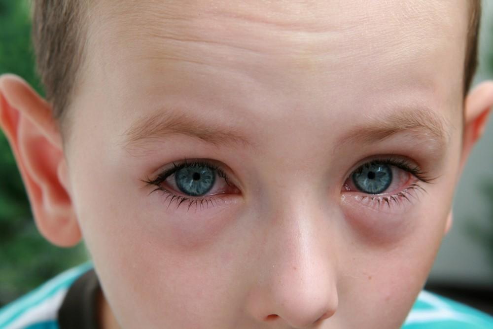 conjunctivita alergica ochii dureau, vederea scădea brusc