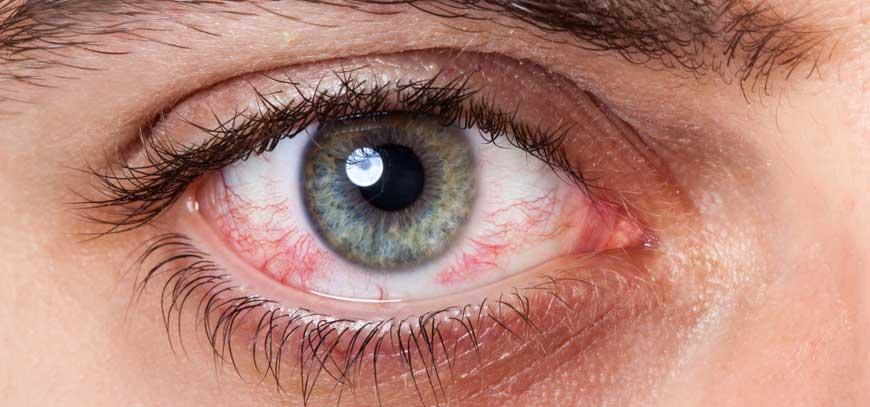conjunctivita virală agravează vederea