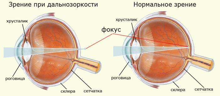 Hipermetropia congenitală: de ce apare hiperopia și cum poate fi vindecată?
