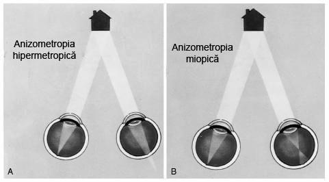 cum să îmbunătățim vederea miopică