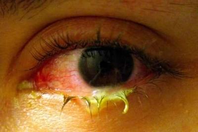 cum să tratezi vederea