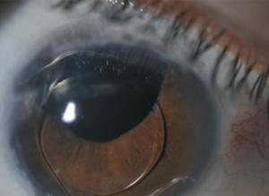 test de vedere a cataractei vederea se deteriorează cu lipsa vitaminei