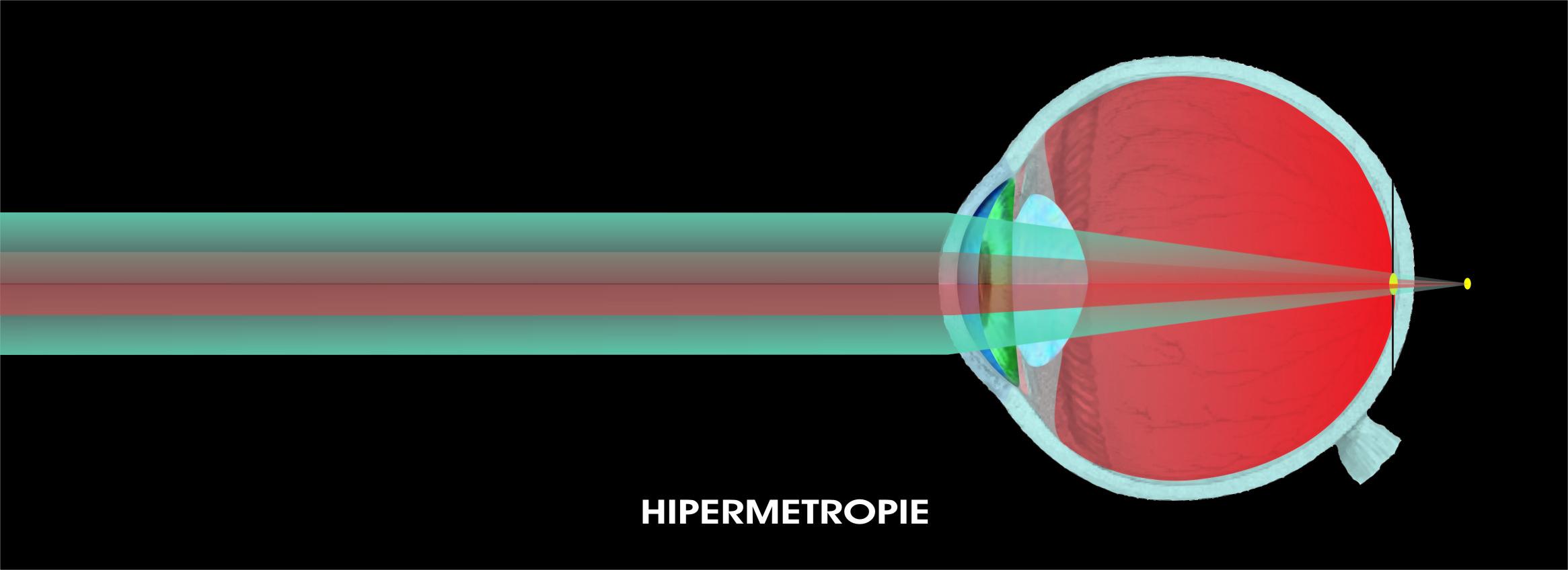 Hipermetropia: Cauze, simptome, tratament